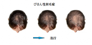 m_hair_001_ex005